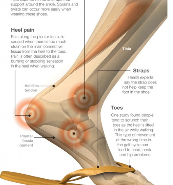 flip flops structure
