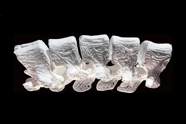 synthetic-3d-printed-hyperelastic-bone-induces-bone-regeneration-could-mend-broken-bones-2