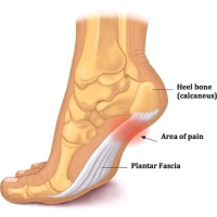 Heel pain and what to do about it